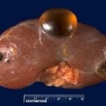 renal cyst