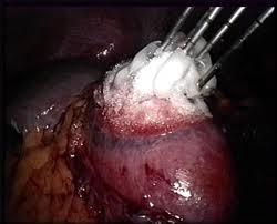 Λαπαροσκοπική εικόνα κρυοθεραπείας