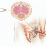 intracavernosal injection