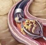 ureteroscopy 1