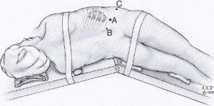 Λαπαροσκοπική – Ρομποτική Απλή/Ριζική Νεφρεκτομή