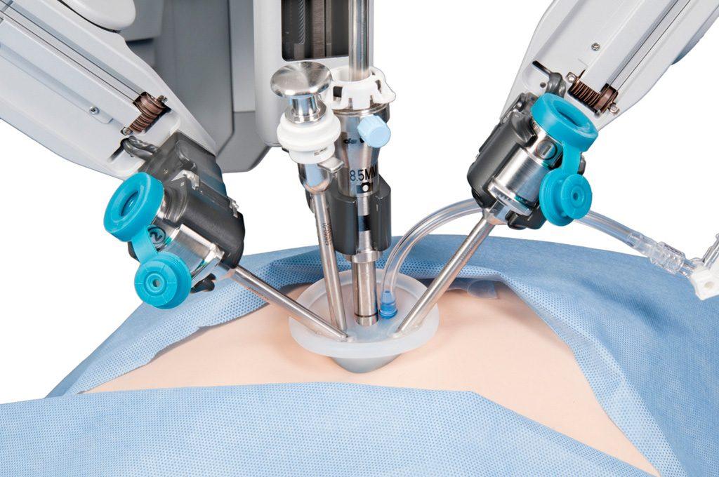 Ρομποτική ριζική προστατεκτομή (da Vinci)