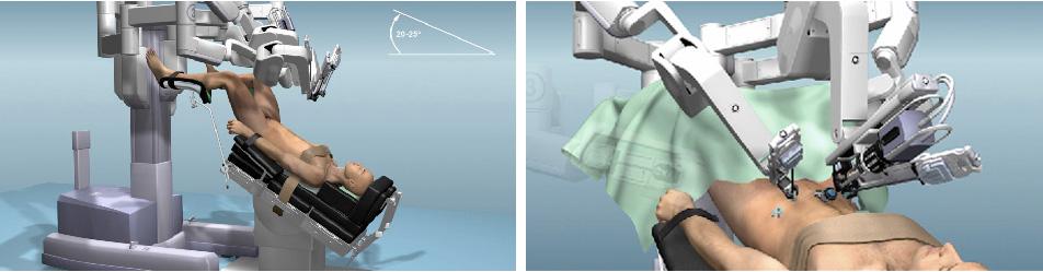 da vinci ρομποτική προστατεκτομή